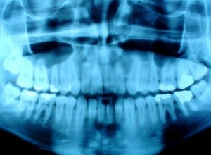 Photo of an x-ray taken at an Abbotsford Dentist