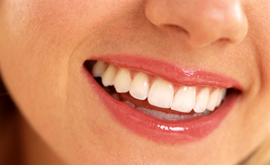 The Pros and Cons of Veneers. Are They Worth It?