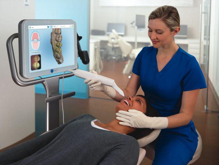 align itero scanning patient